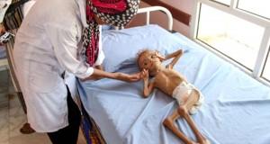 Guerre au Yémen Plus de cinq millions d'enfants menacés de famine