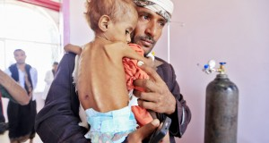 La famine frappe et tue des enfants
